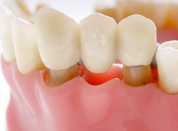 Dental Implants Brisbane - Bridges
