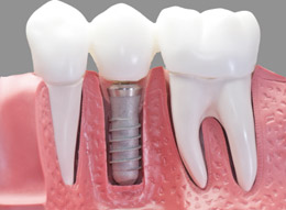 Dental Implants Brisbane