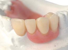 Dental Implants and Dentures Brisbane