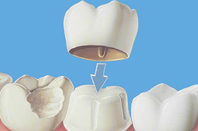 Ceramic Crowns for Cosmetic Dentistry Brisbane