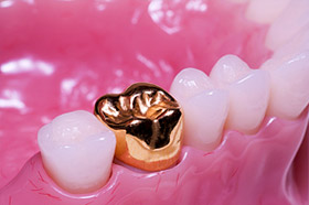 Gold Crowns - Cosmetic Dentistry Brisbane