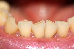 Teeth Grinding Cures Brisbane