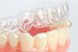 invisalign invisible braces brisbane