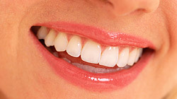 Cosmetic Dentistry Brisbane - woman smiling