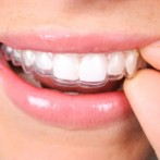Smile with confidence – Invisalign