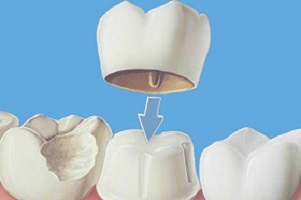 dental crowns brisbane