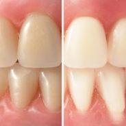 The Disturbing Rise of Teeth Whitening in Brisbane