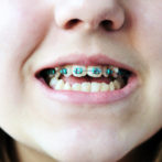 Crooked Teeth? It's Not Too Late To Straighten Them!