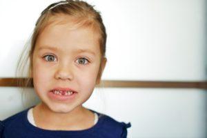 adult teeth coming in behind baby teeth