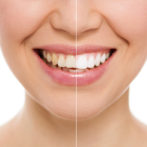 Can My Teeth Be Whitened? Teeth Whitening Or Cosmetic Veneers