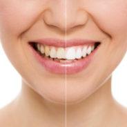 Can My Teeth Be Whitened? Teeth Whitening Or Cosmetic Veneers