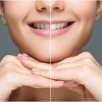 What to Expect During In-Chair Teeth Whitening: Brisbane Dentist Explains