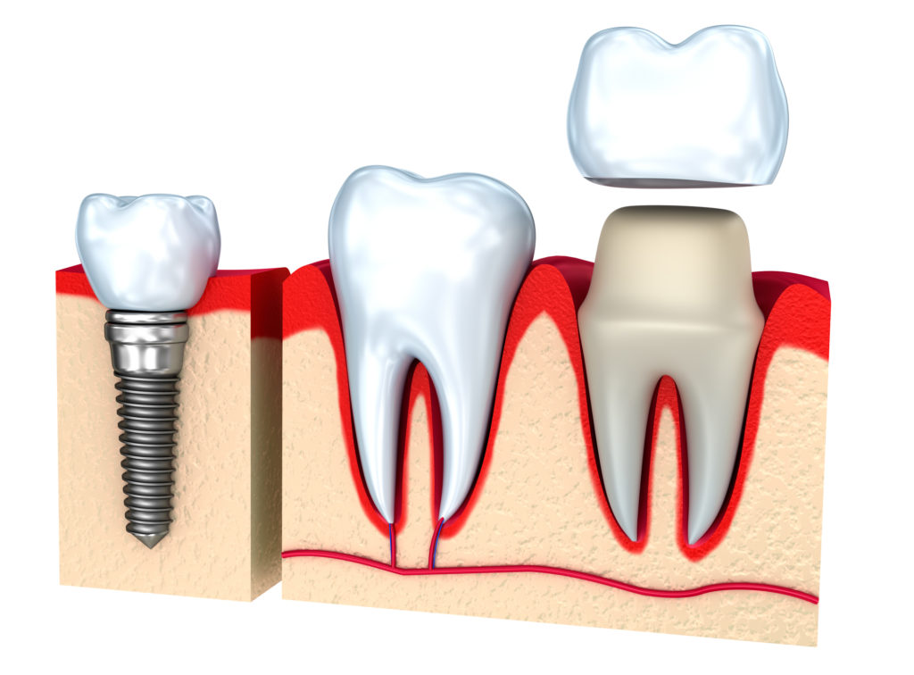 Looking for info on a tooth cap or crown? Here's what you need to know before you invest in a gold tooth cap!